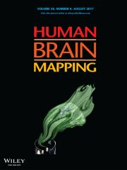 Article accepted for publication: Human Brain Mapping