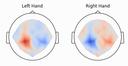 Braindecode: Deep learning toolbox for EEG